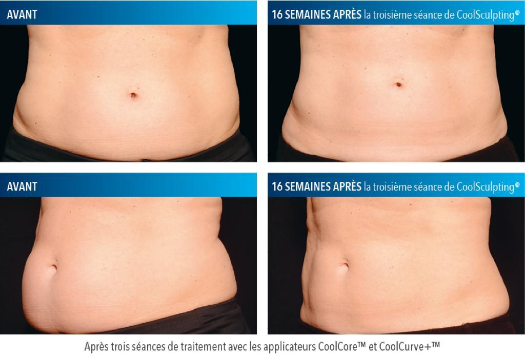 Coolsculpting Ventre