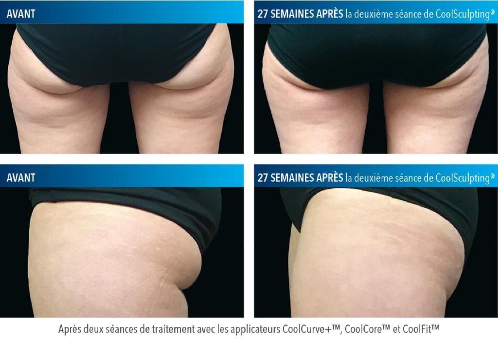 Coolsculpting Fesses