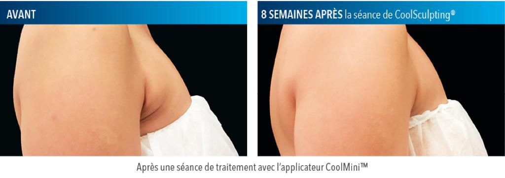 Coolsculpting Région axillaire