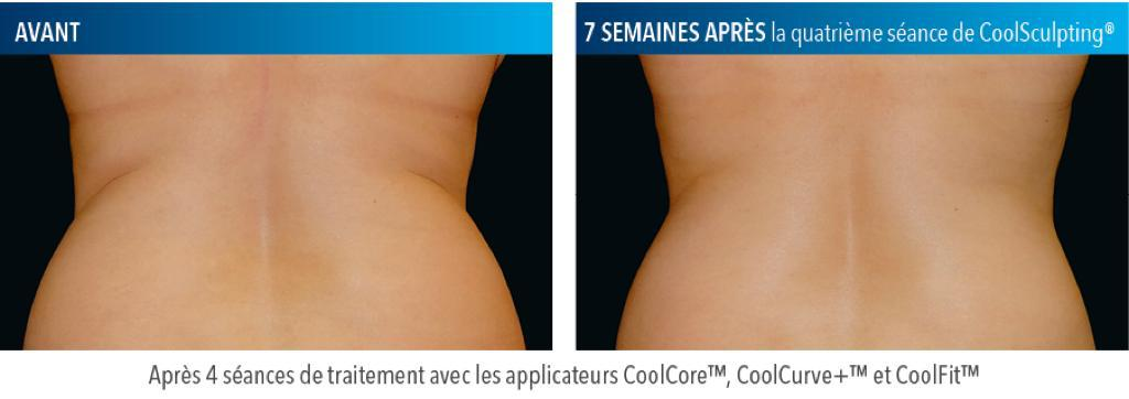 Coolsculpting Dos